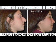 RINOPLASTICA ROMA NAPOLI SALERNO CLINICA DEI NASI DR MARTINO