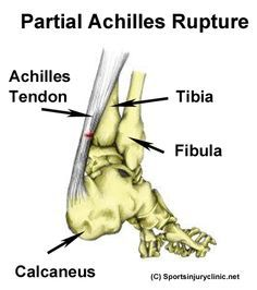 A tear in the achilles tendon
