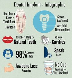 Thinking about getting dental implants in 2017? Here are some facts to help with your decision.