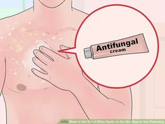 How to Get Rid of White Spots on the Skin Due to Sun Poisoning Sun Spots On Skin, Spots On Face, What Is Vitiligo, Body Rash, Get Rid Of Spots, Sunburn Skin, Fungal Infection Skin, Clear Skin Tips