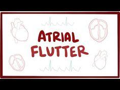 Atrial flutter (type 1, type 2) - causes, symptoms, diagnosis, treatment, pathology - YouTube