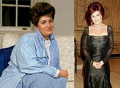 Sharon Osbourne - before and after!