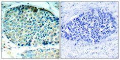 HSP27 Antibody (pSer78) - Rabbit Polyclonal antibody to HSP27 (pSer78). Species Reactivity: Human. Applications: WB, IHC, ICC/IF.