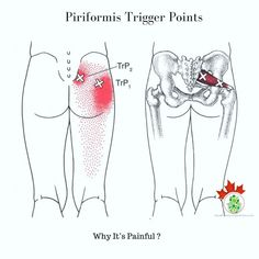Males muscles male pelvic pain pinterest muscles trigger points in the piriformis are very common and are usually involved to some extent anytime there is pain in and coming from the glutealpelvic region publicscrutiny Images