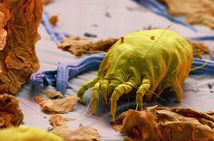 25 Things You Never Needed To See Under An Electron Microscope,,A Dust Mite