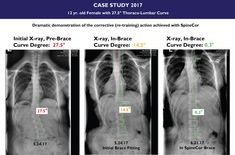 The SpineCor Scoliosis Brace can have amazing results. Call for a Free Phone Consultation with one of our doctors.
