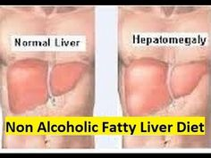 Non Alcoholic Fatty Liver Diet - Diet Plan for Fatty Liver Disease - YouTube