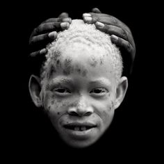 Zamda an albino girl and her mother's hands, Tanzania by Eric Lafforgue, via Flickr