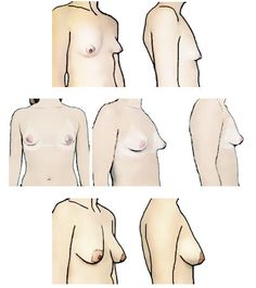 Classify Your Breasts: Breast Shape. Expert Bra Fitting Advice by Tomima Edmark