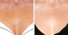 Laser skin resurfacing helps to dramatically rejuvenate the skin. Treatment radically improves aged, sun-damaged and pigmented skin on the face and body. Beauty Secrets, Beauty Hacks, Beauty Tips, Black Slip On Sneakers, Skin Images, Skin Resurfacing, Skin Tag, Homemade Facials, Cosmetology