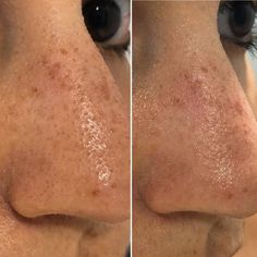 R/SkincareAddiction is using the 50 Shades of Snail method to remove their sebaceous filaments, and we can't look away from these before-and-after photos. Sebaceous Filaments, Pore Strips, Types Of Acne, Makeup Wipes, Color Your Hair, Cleansing Oil, Blackhead Remover, Acne Prone Skin, Skin Care Regimen