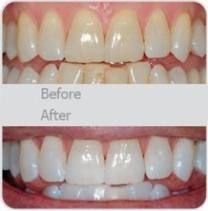 Baking soda teeth whitener. This does work and fast too! A couple of days before my wedding I put toothpaste on my toothbrush and sprinkled a little pile of baking soda on top and brushed with it. Tastes pretty gross but you will notice results within even a day or two.