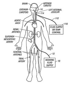 veins and arteries of the body diagram