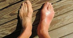 Gout is a type of arthritis. Arthritis is a common condition that causes swelling and pain in your joints. Gout is considered a chronic disease, meaning it does not have a cure and will usually last your whole life. Home Remedies For Gout, Gout Remedies, Natural Remedies, Signs Of Gout, Essential Oils For Gout, Gout Relief, Pain Relief, Natural Treatments, Shin Splints