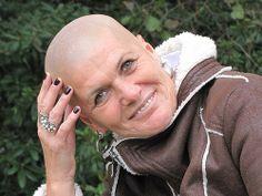 bald pics Mature women