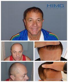 Cs. Zoltán - 9000 hajszál beültetése - HIMG Klinika  Zoltán nagy területen kopaszodott a fejének elülső részén. Feladatunk volt, hogy természetes hajvonalat varázsoljunk számára. A beavatkozás 2 napos volt és egy évvel később egy boldogabb és magabiztos ember lett.  http://hajgyogyaszatszeged.hu/