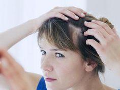 Często widać ją na linii włosów. Jak rozpoznać łuszczycę skóry głowy?