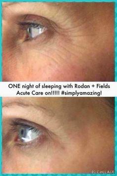 Executive Consultant Rodan and Fields Dermatologists, Ashlyn Milosch - Google+