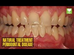 HOW TO GET RID OF PLAQUE AND GUM DISEASE WITHOUT EXPENSIVE TREATMENS | Healthy Motivator