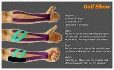 golfer's+elbow   Medial Epicondylitis)