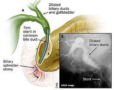 Endoscopic Therapy Drainage should be performed in patients with biliary obstruction as evidenced by a dilated common bile duct and jaundice, or a markedly elevated alkaline phosphatase, Elevated Alkaline Phosphatase, Medical Blogs, Bile Duct, Gastroenterology, Anatomy And Physiology, Medical Students, Radiology, Nurse Life, Autoimmune