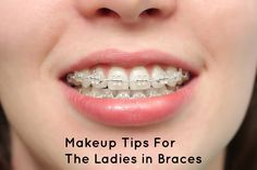 Makeup tips for women with braces
