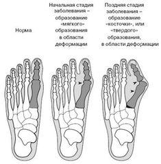 Рост косточки в районе большого пальца стопы – довольно распространённая патология, которая доставляет неудобство многим женщинам.Но и этот недуг можно приостановить, если начать лечение заб…