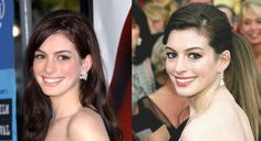 Celebrity Anne Hathaway nose job. Visit us at http://www.drgregpark.com/nose-surgery for more information about rhinoplasty surgery