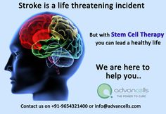 #Stroke is a condition where brain gets deprived of sufficient oxygen supply. #Stem #Cell #Therapy is emerging as a promising alternative to conventional mode of treatments. It is also completely natural and #drug-#free has widely being used today for managing the symptoms of stroke. We at #Advancells have treated hundreds of cases in expert's guidance on Stem Cell Therapy for various diseases.