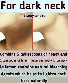 ・・・ DIY remedy for dark neck Tag your friends 🤗🤗 + someone who needs this . Good Skin Tips, Clear Skin Tips, Clear Skin Face, Face Skin Care, Skin Care Remedies, Dark Neck Remedies, Herbal Remedies, Beauty Tips For Glowing Skin, Skin Care Routine Steps