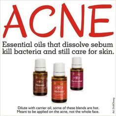 essential oils for acne by sally.justman