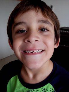 Santi sin su primer diente