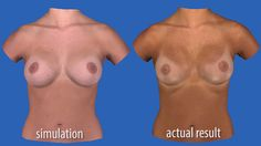 3-D Imaging Helps Patients Visualize #Breast Augmentation Results- Would this benefit you?