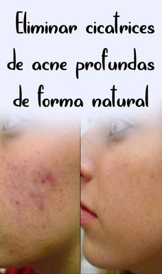 Fantastic beauty tips for face tips are readily available on our web pages. Read more and you wont be sorry you did. Health And Beauty Tips, Health Tips, Healthy Beauty, Brown Spots On Face, Long Hair Tips, Skin Tag Removal, Les Rides, Homemade Beauty, New Skin