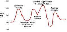 Intra-aortic balloon pump - Ganfyd