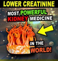#kidneydisease #kidneyfailure #dialysis #chronickidneydisease #diabetes #highbloodpressure #creatinine #kidneyrepair #kidneyhealth #00kidney Kidney Health, Chronic Kidney Disease, Kidney Failure, Dialysis, High Blood Pressure, Diabetes, Medicine, Medical