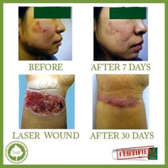 cool  Best SCAR REMOVAL TREATMENT for SCARS  MARKS BURN on FACE & BODY  - For Sale View more at http://shipperscentral.com/wp/product/best-scar-removal-treatment-for-scars-marks-burn-on-face-body-for-sale/