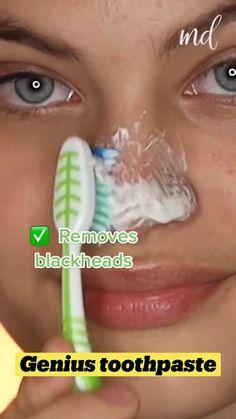 Holistic Approach, Blackhead Remover, Beauty Hacks, Beauty Tips, Beauty Skin, Remedies, Skin Care, Makeup, Weird