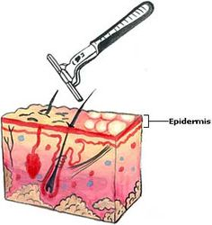 Home remedies for razor burn, ingrown hairs, razor bumps and skin irritations after shaving.