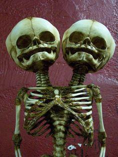 2 headed fetus