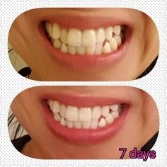 Nu Skin, White Teeth Tips, Nuskin Toothpaste, Teeth Care, Whitening, Tooth Paste, Amazing, Hustle, Things To Sell