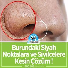 Hooded Eyes, Health Fitness, Vegetables, How To Make, Pictures, Skincare Routine, Masks, Health, Vegetable Recipes