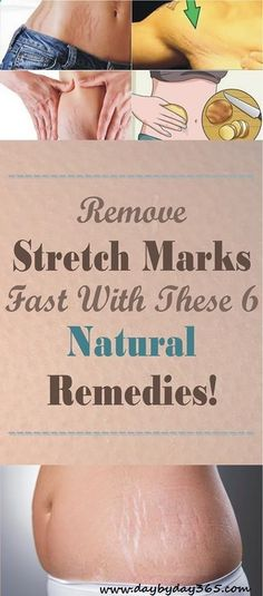 Remove Stretch Marks Fast With These 6 Natural Remedies!