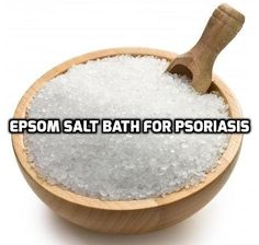 Using Epsom salt soaking bath for Psoriasis reduces inflammation and itching. Mental relaxation and relief from joint pain are additional benefits.