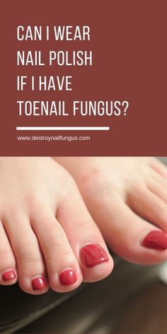 I Wear Nail Polish If I Have Toenail Fungus? Wondering if you can put nail polish on your toenail fungus? The answer may surprise you!Wondering if you can put nail polish on your toenail fungus? The answer may surprise you! Toe Fungus Remedies, Toenail Fungus Treatment, Cure For Toenail Fungus, Treating Toenail Fungus, Fungus Toenails, Antifungal Nail Polish, Wave Nails, Fungi, Health Tips