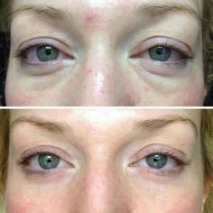 No more bags, dark circles, or fine lines! Rodan + Fields Multi function eye cream! Kristens.myrandf.com