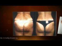 Celulitis Nunca Mas Gratis| Cellulite visit : for more information  Celulitis Nunca Mas Gratis,  What Is Celulitis,  Cellulite,  Cellulitis Treatment,  Cellulite Treatment,  Cellulite Treatment,  Cellulite Removal,