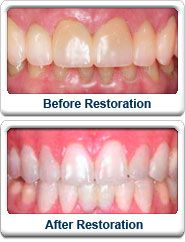 Whitening Your Teeth - Visit http://www.pricecanvas.com/health/teeth-whitening-products/ For Teeth Whitening Products.