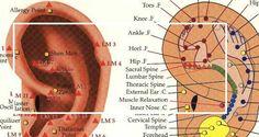 auriculoterapia emagrecimento - Pesquisa Google