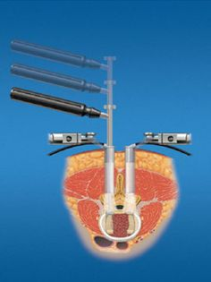 Minimally invasive spine surgery (MISS)  proves to be advantageous in comparison with regular spine surgery.